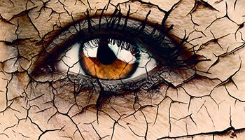 Be Wise About Dry Eyes